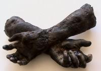 braccia carbonizzate